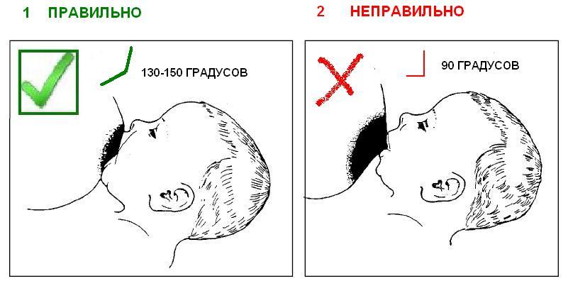 правильно, когда ребенок сосет не сосок, а грудь, поэтому плоский сосок мало влияет